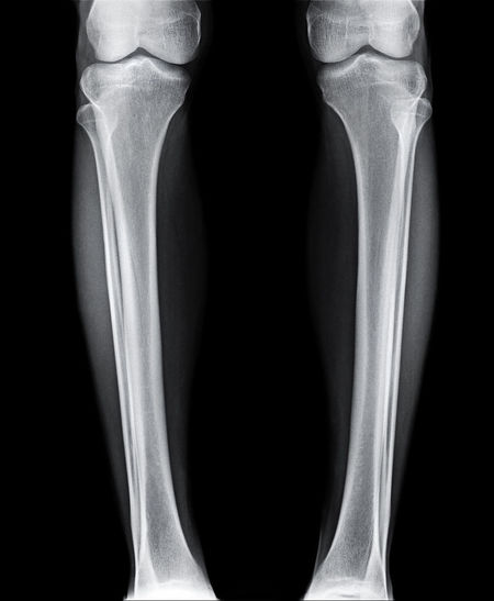 Anatomy Black Background Body Part Bone  Fibular Fracture Front View Healthcare And Medicine Hospital Human Body Part Human Bone Human Joint Human Knee Human Limb Human Skeleton Joint - Body Part Knee Limb Medical Exam Medical X-ray People Skeleton Tibia Wrist X-ray Image