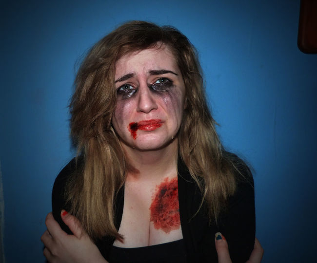 Portrait of young woman with bruises against blue wall