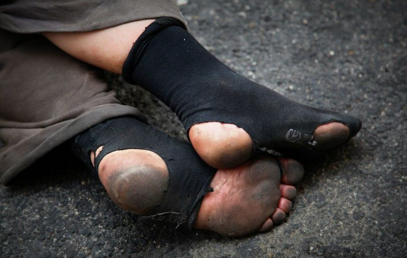 Low Section Of Beggar Wearing Torn Socks