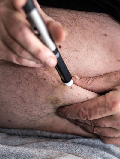 Midsection Of Man Injecting Insulin In Abdomen