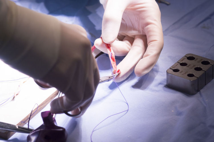 Cropped hands of doctor cutting stitches over table