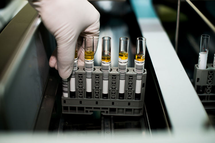 Cropped hand of scientist holding chemicals in test tubes