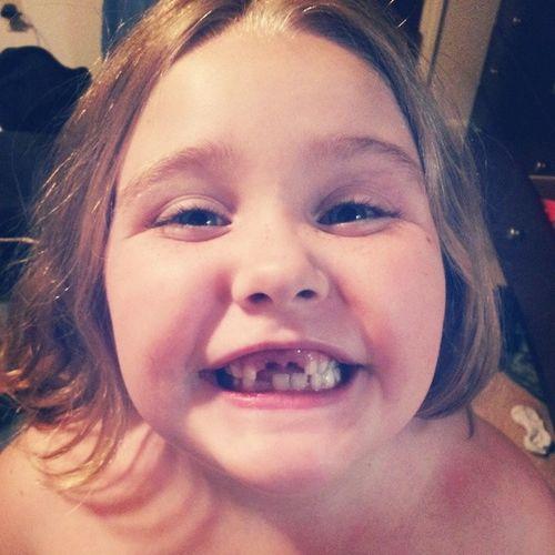 Two teeth down!! HerComesTheToothFairy