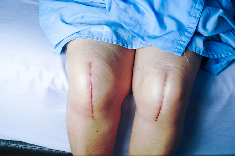 Close-up of wounds on legs