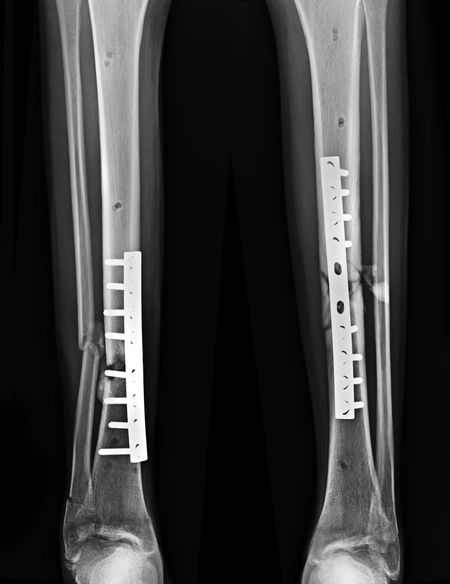 Fixation Anatomy Arch Black Background Body Part Bone  Close-up Fixed Healthcare And Medicine Hospital Human Body Part Human Bone Human Leg Human Limb Indoors  Internal Fixation Limb Medical Exam Medical X-ray Number People Plate Screw Tibia X-ray Image