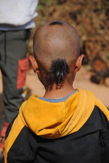 Rear view of bald boy