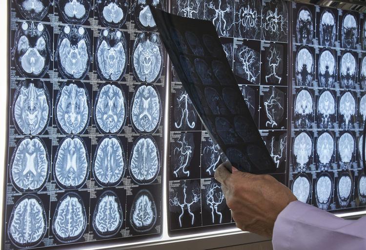 Human Hand Holding Medical X-Ray Image