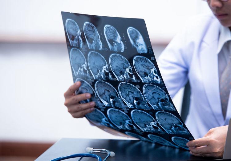 Doctor Examining X-Ray Image In Hospital