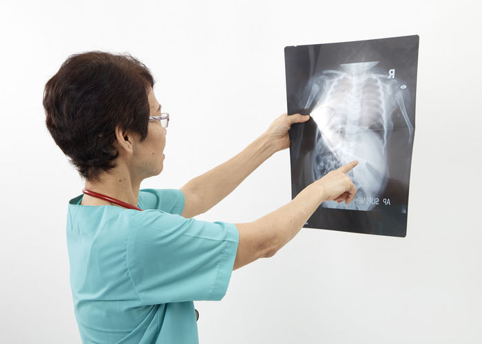 Doctor examining x-ray image against white background