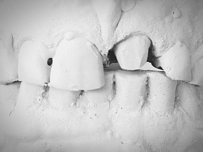 Zahn um Zahn , Lauf der Dinge , zum Glück gibt es ja Zahntechniker ! Zahntechnik Roadtrip VisionaryArts Dental EyeEm Selects Full Frame Close-up No People Wall - Building Feature White Color Day Backgrounds