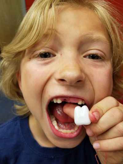 Child Childhood Looking At Camera Children Only People Blond Hair Human Mouth Close-up Toothy Smile Boy Missing Tooth