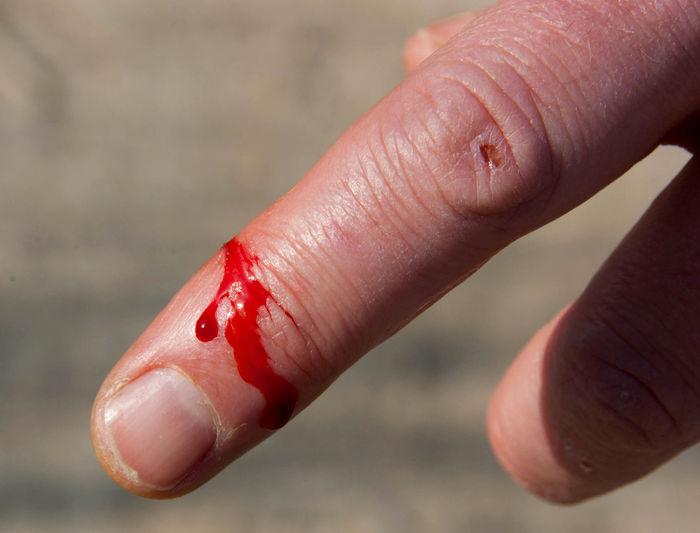 Close-up of bleeding index finger
