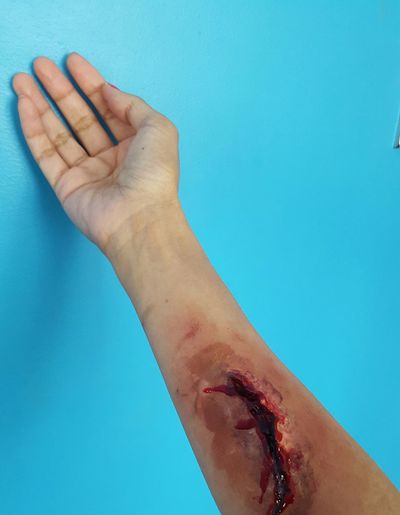 Cropped image of wounded hand on blue wall