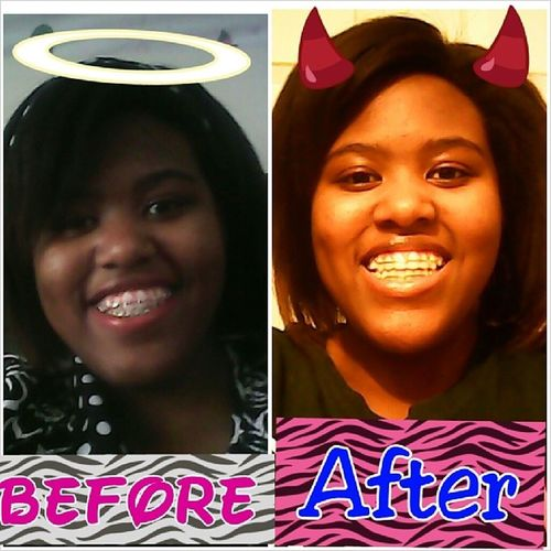 TransformationTuesday NoMoreBraces TeamRetainer Glowinthedark Don't feel the same without my braces :( but o well I was too ready to get those things off!! :D