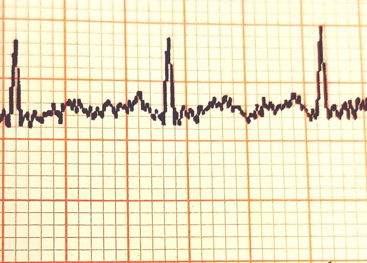 My life my exsistance Heartbeat Moments Pulse Trace ECGscan Timeout Blood Pressure Heart Attack Waiting To Happen Grid Paper No People Day Graph Bird