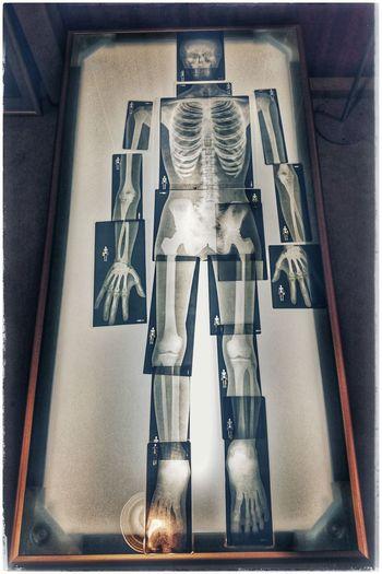 Die etwas andere Ausstellung Skellet  Röntgen Onceuponatime Bodymodification Boneset