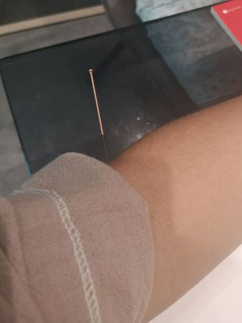 #Acupuncture Acupuncture & Acupressure Therapy Acupuncture Close-up