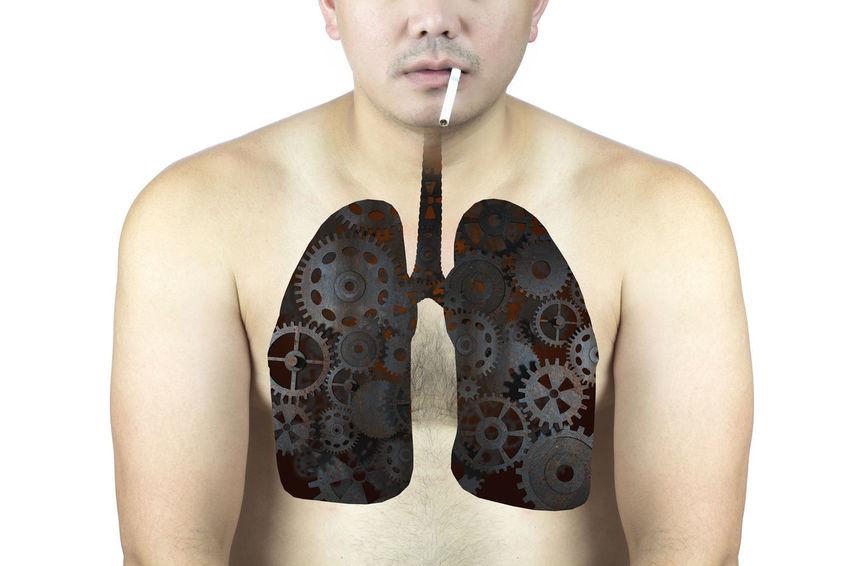 human lung decline Unhealthy Sick Copd Nodule X-Ray Thorax Nicotine Cirrhosis Carcinoma Breath Alcoholism Cigarette  Smoker Pulmonary Contagious  Bronchial Infection Cancer Organ Healtcare Smoking Examination Decline Pneumonia Lung