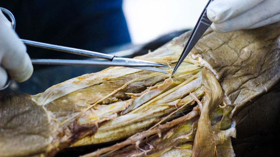 Anatomy dissection of a cadaver showing adductor canal using scalpel scissors and forceps cutting skin flap revealing important structures arteries veins nerves Adductor, Canal, Surgery, Human, Anatomy, Dissection, Cadaver, Fascia, Skin, Flap, Forceps, Scalpel, Blade, Sharp, Tissue, Muscle, Artery, Nerve, Vein, Structure, Autopsy, Dead Body, Medical, Stainless, Metal, Body, Doctor, Morgue, Health, Dead, Mortuary, Body Part Close-up Day Finger Focus On Foreground Food Food And Drink Freshness Hand Healthy Eating Holding Human Body Part Human Hand Kitchen Utensil Occupation One Person Preparation  Real People Selective Focus Unrecognizable Person