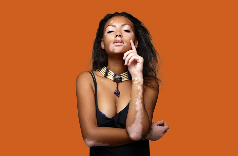 Portrait of young woman with vitiligo standing against orange background