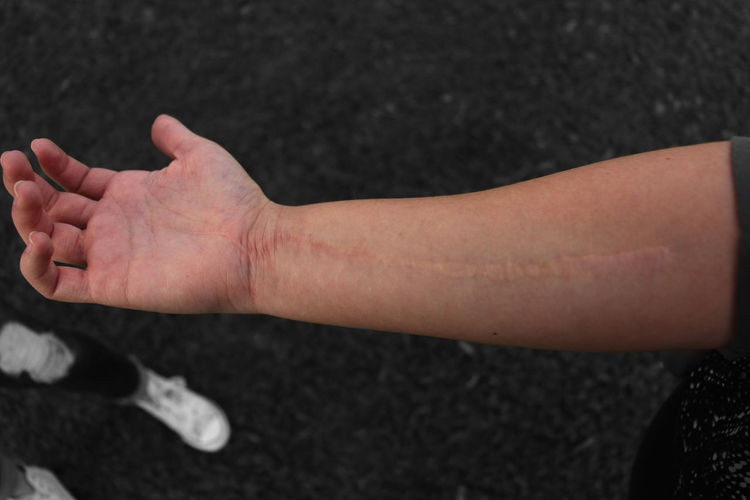 Cropped Hand Of Person With Scar On Road