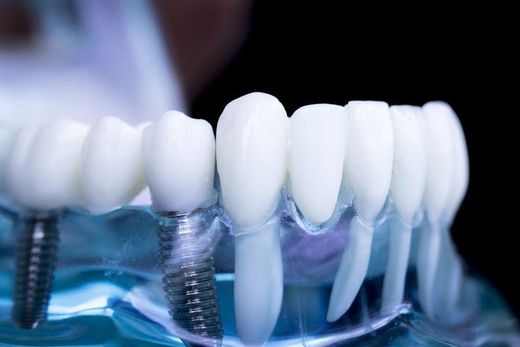 Close-up of dentures