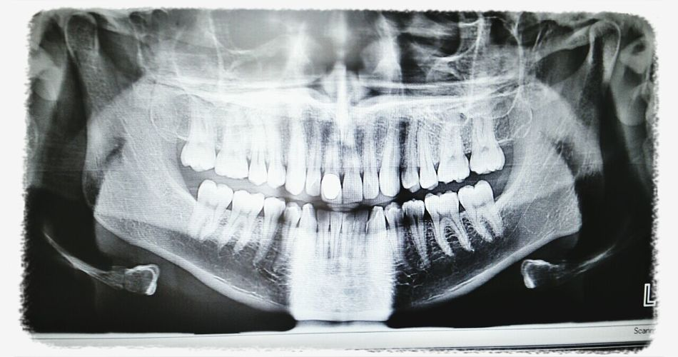 Frogman X-Ray at the Dentist