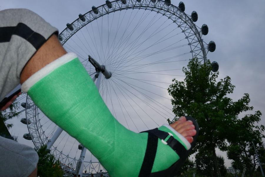 Leg Cast Arm Cast Armcast Broken Arm Broken Leg Brokenarm Brokenleg Crutches Legcast