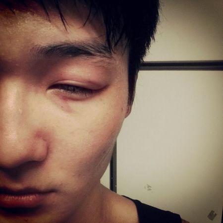 對不起 我的眼睛 沒有保護好你... 痛 難過
