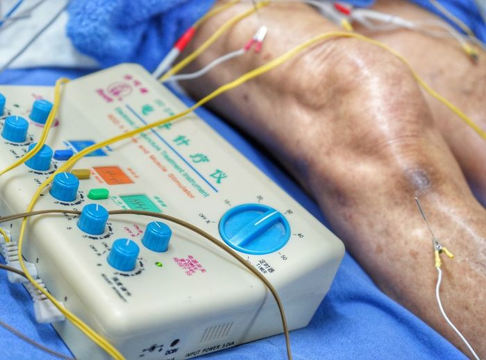 Midsection of person taking acupuncture massage in hospital