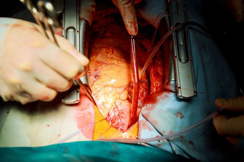 Cropped image of surgeons performing surgery