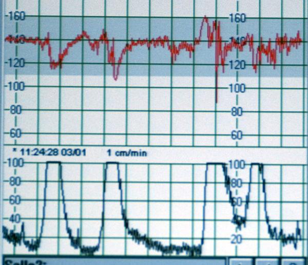 Full Frame Indoors  Hospital Medical Statistics  Graphic