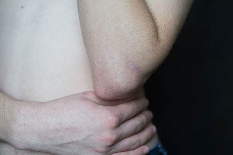 Midsection of shirtless mid adult man with wounded hand against black background