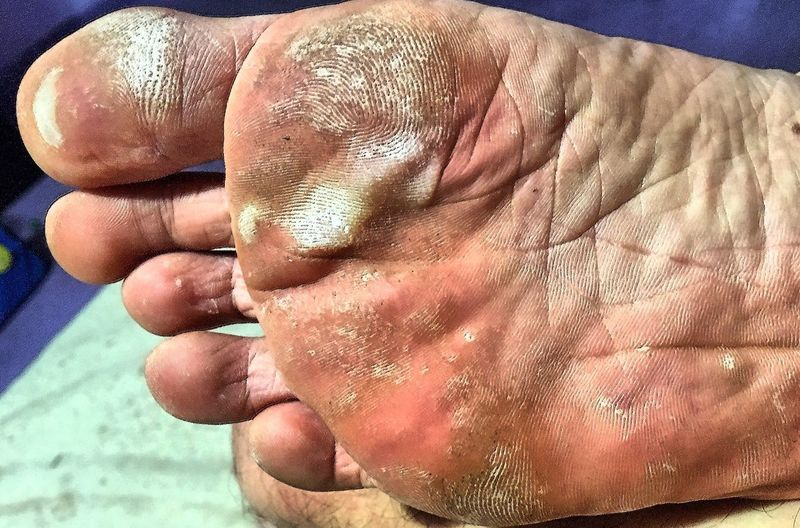Barefoot after barefoot running, sore feet, blisters on feet. Sore Feet Foot Blisters Blistering Blisters Barefoot Running barefoot Foot Human Body Part Real People Lifestyles Men People Close-up EyeEmNewHere