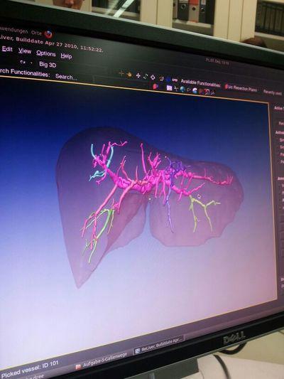 Liver Mitk Segmentation
