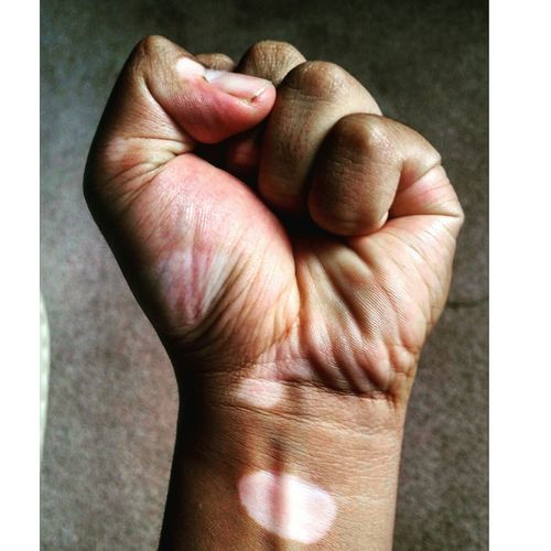 Close-up of clenched fist affected by vitiligo