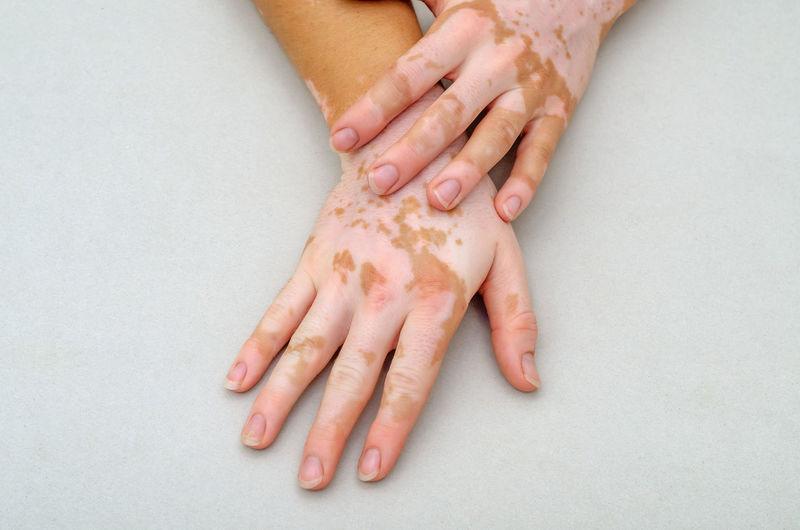 Vitiligo on the