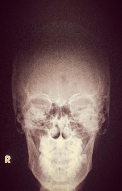 My_scull ,X-ray