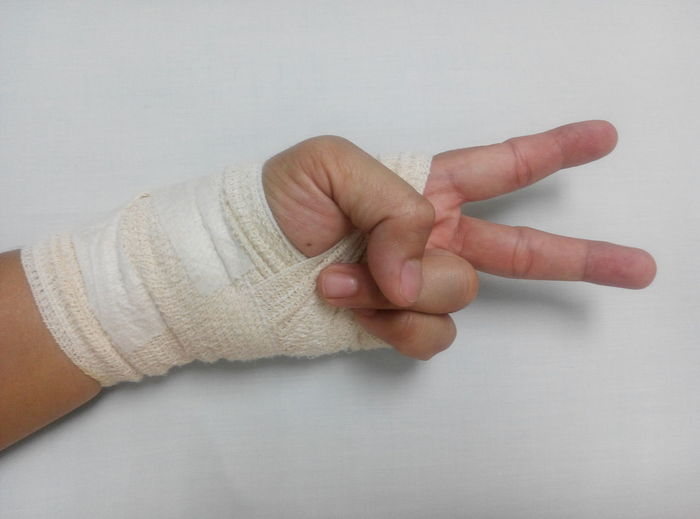Cropped image of person hand covered with bandage showing victory sign