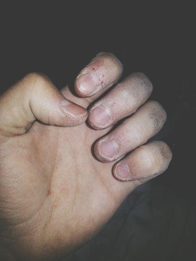 Dedos de feria