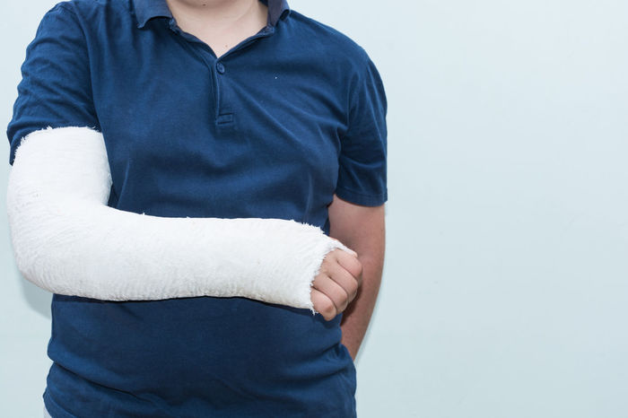 Arm In A Cast Broken Bone Adult Arm Boys Broken Broken Hand Cast Arm Close-up Day Healthcare And Medicine Human Body Part Human Hand Indoors  Lifestyles Men One Person People Real People Standing White Background