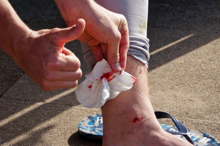 Cropped image of man with injured ankle gesturing thumbs up sign