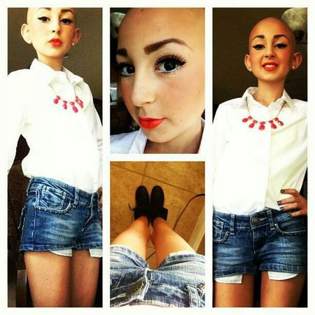 This Girl Right Here Has Cancer ' An Still Is Beauiful (: <333