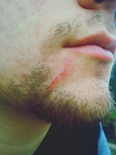 Pain Blood Hurt City Mouth Man Male Wound Wounded Lips Face Check This Out Pale Pale Skin Pale Lips Hurts Hurting Hurt! Wounds Scars Scar In Pain Scratches Scratch Scratched