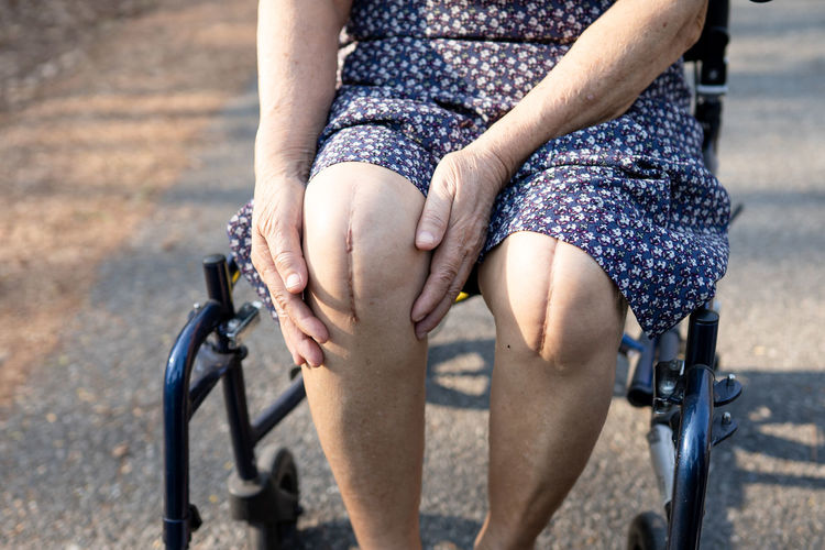 Midsection of woman with scar on knees outdoors