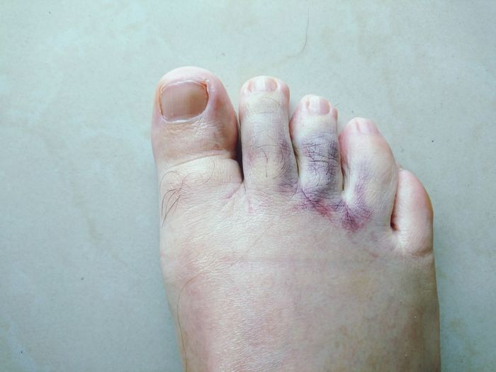 Low section of person with injured foot