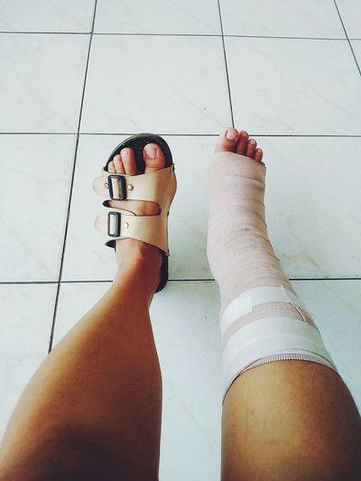 Foot Bimalleolar Fracture Road To Recovery Ankle Fracture Post Op Bandage