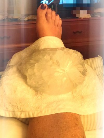 Leg Ankle Swollen Ice Pack White And Clear Red Toes Eyemphotography Alternative Fitness