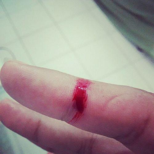 Me cortei com uma faca de serra muito Burro Lesado Sangue Dedo blood finger corte acidente domestico
