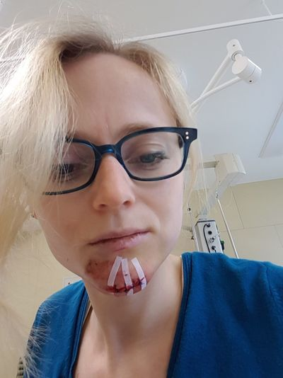 Headshot of woman with stitches on injured chin at hospital
